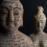 Acupuncture-is-an-ancient-Chinese-methodology
